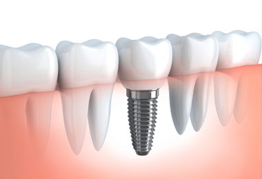 dental implant charlotte