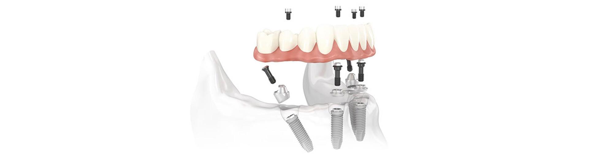 Dental Implants Charlotte