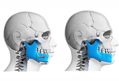 Charlotte Corrective Jaw Surgery